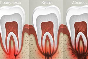 Зубная боль при кисте или гранулеме