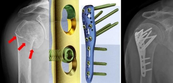 Остеосинтез при неправильно сросшемся переломе