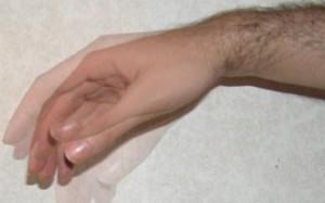 Разновидность тремора рук