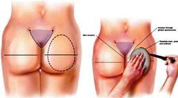 Операция глютеопластика