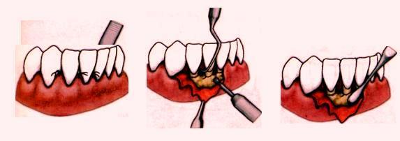 Метод хирургического лечения гнойных периодонтальных карманов