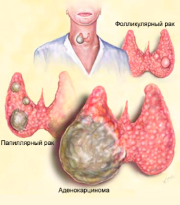 Виды рака щитовидки