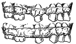 Пародонтальные повязки