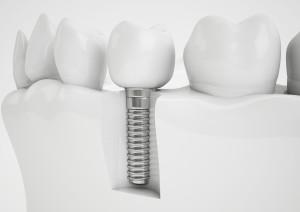 рекомендации после имплантации зуба