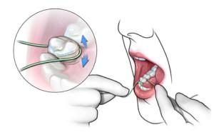 Рекомендации после имплантации