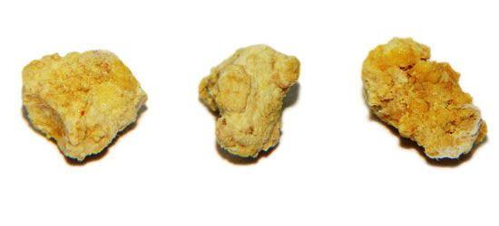 Симптомы и лечение камня слюнных желез