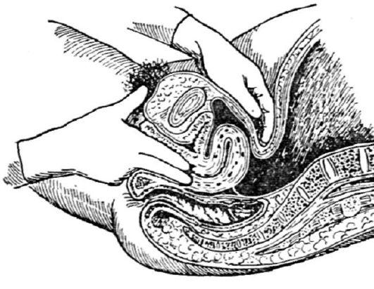 Схема гинекологического массажа при загибе матки