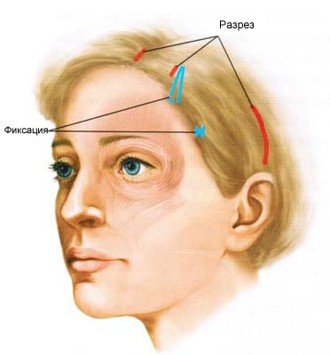 Схема разрезов при эндоскопической подтяжке лица