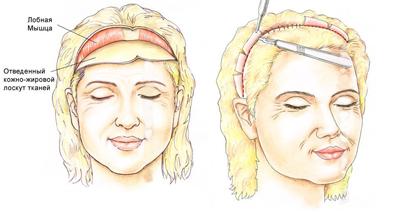 Схема разрезов при эндоскопической подтяжке верхней части лица