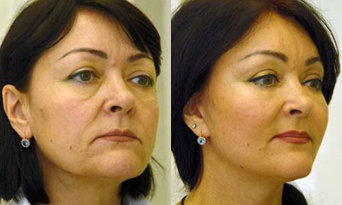 Эндоскопическая подтяжка лица - фото до и после