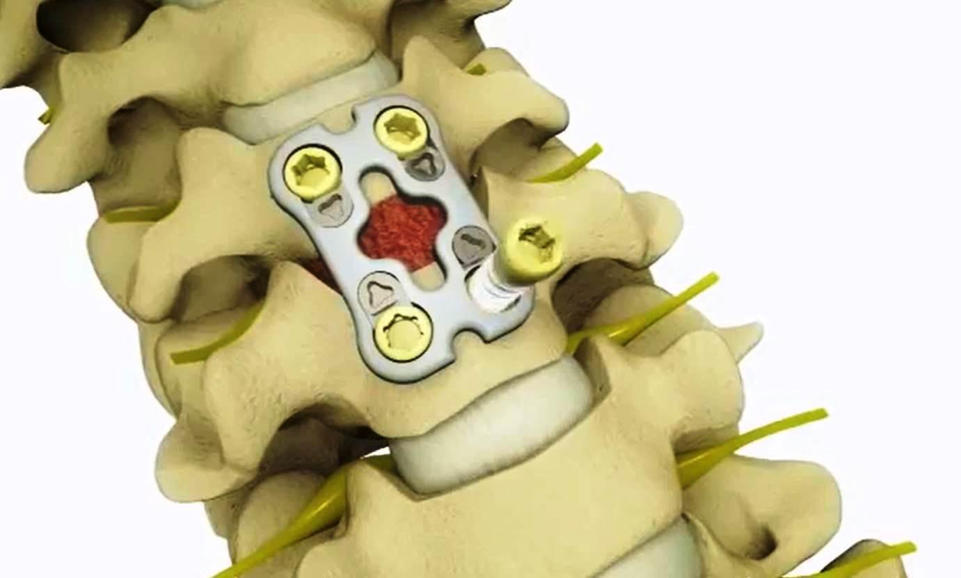 Лечение грыжи в шейном отделе позвоночника - операция