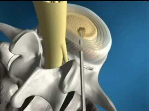 Пункционная декомпрессия спинного мозга
