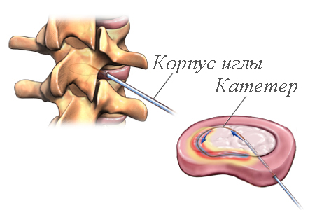 Внутридисковая электротермальная терапия