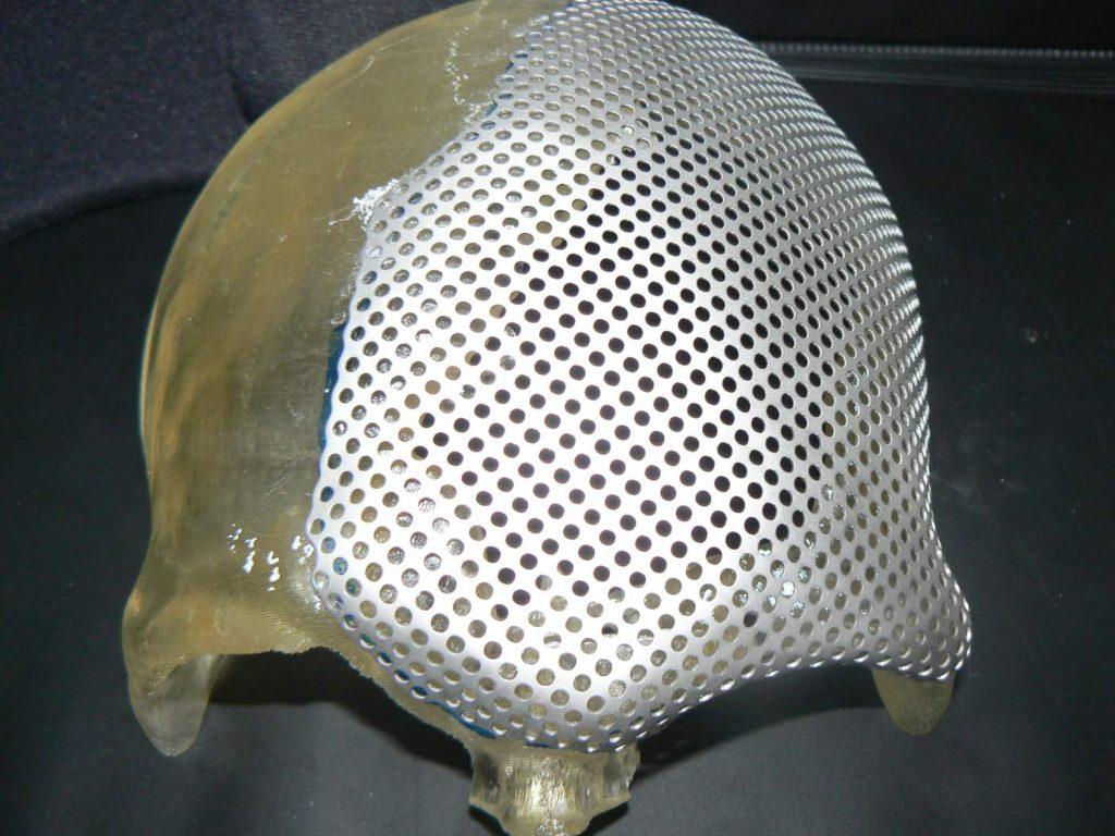 Стереолитографические модели для пластики дефекта черепа