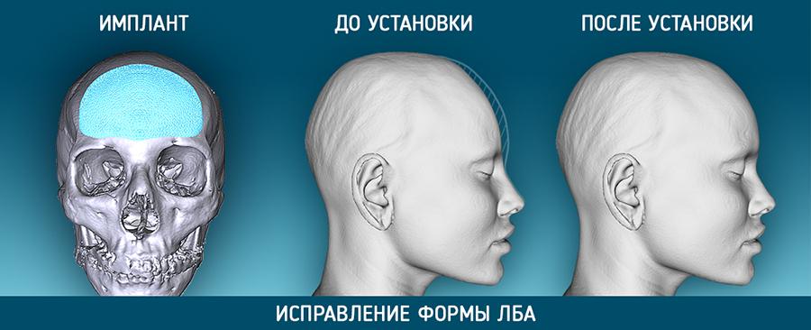 Косметическая краниопластика