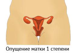 1 степень опущения матки