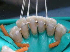 Вантовое шинирование зубов арамидной нитью