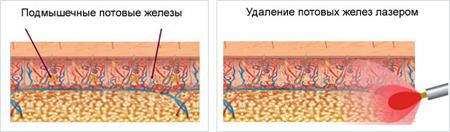 Липосакция при гипергидрозе