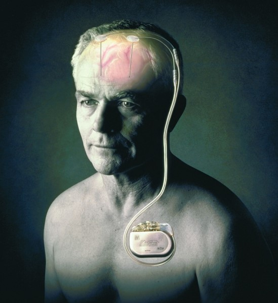 Глубокая стимуляция ГМ в лечении болезни Паркинсона