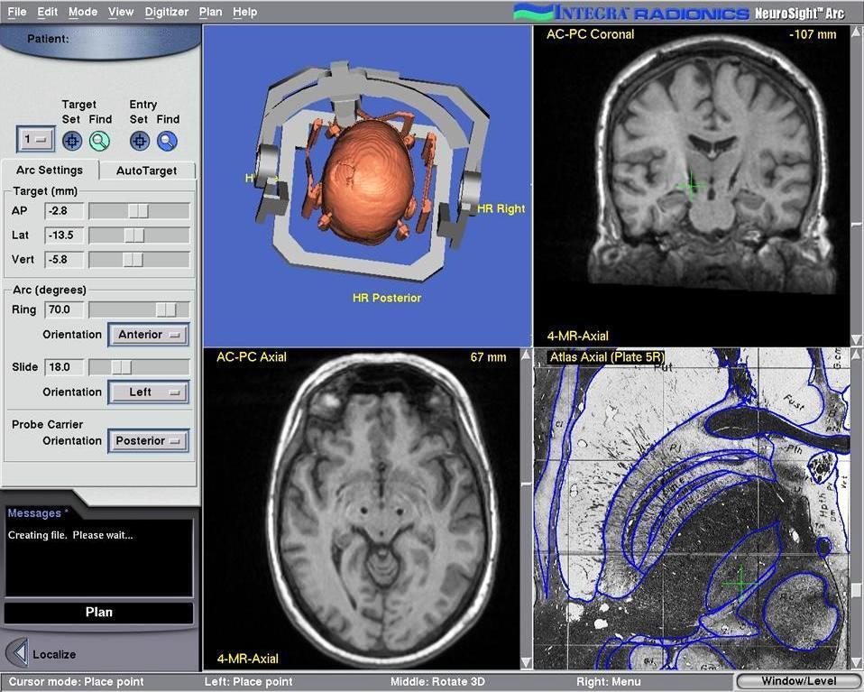 Таламотомия в лечении болезни Паркинсона