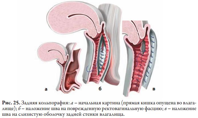Кольпоперинеография, совмещенная с леваторопластикой