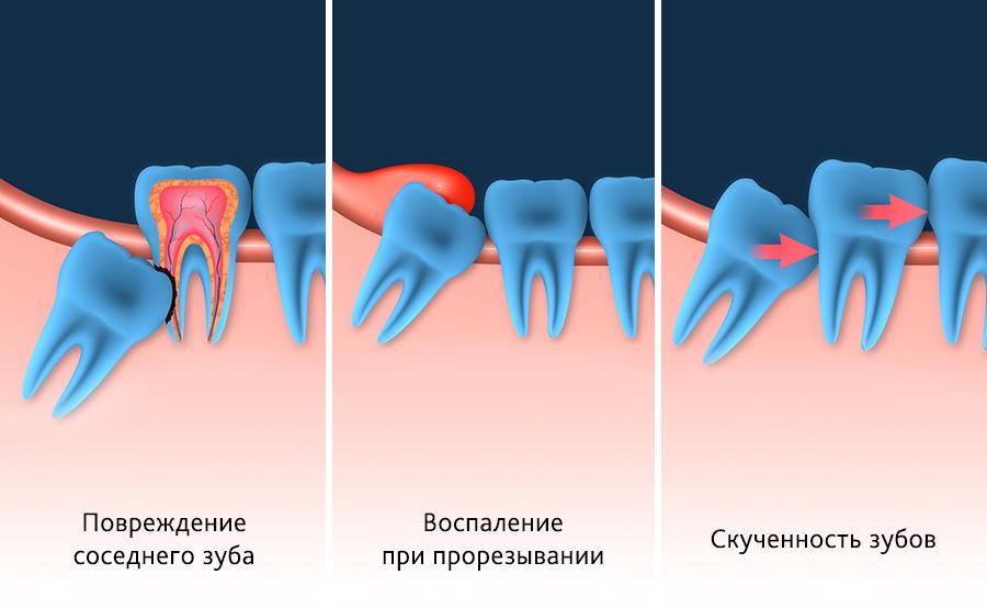 Когда зубы мудрости надо удалять?