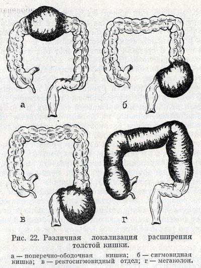 Локализация участков аганглиоза и расширения кишки при болезни Гиршпрунга