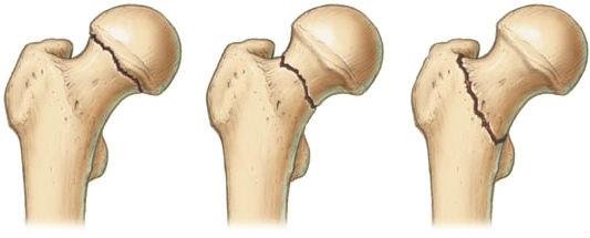 Виды переломов шейки бедра
