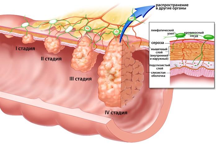 Аденокарцинома прямой кишки - стадии заболевания