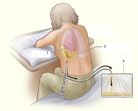 Подготовка пациента к пункции плевры
