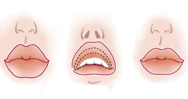 Ушивание губ - новый тренд пластической хирургии