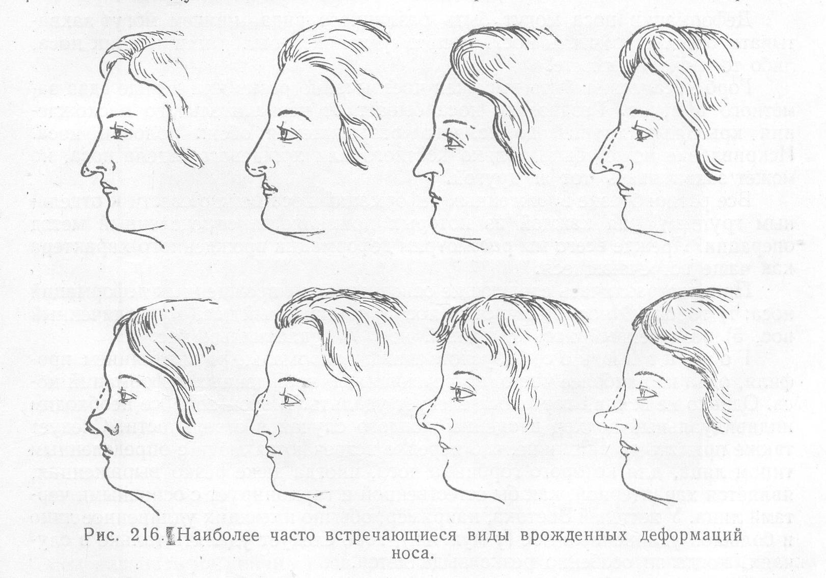 Виды врожденных дефектов и деформаций носа – лечение аномалий носа
