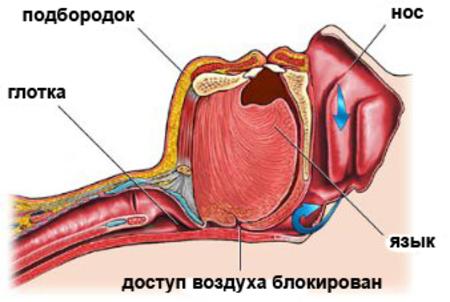 Лечение храпа операцией
