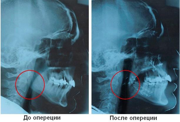 Лечение храпа операцией - рентген до и после
