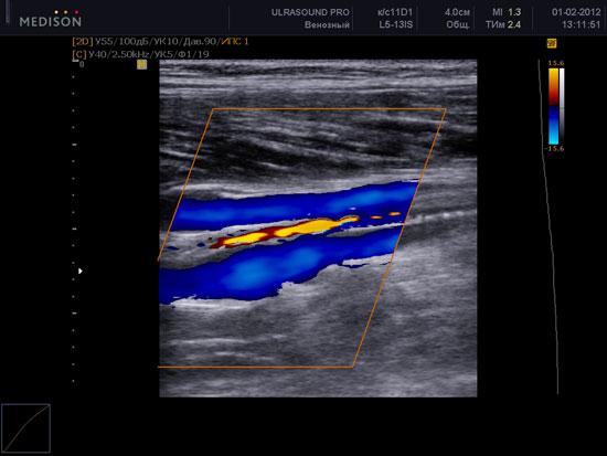 Дуплексное (УЗИ   УЗДГ) сканирование вен нижних конечностей
