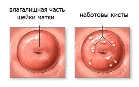 Лазерное лечение эндоцервикоза и наботовых кист шейки матки