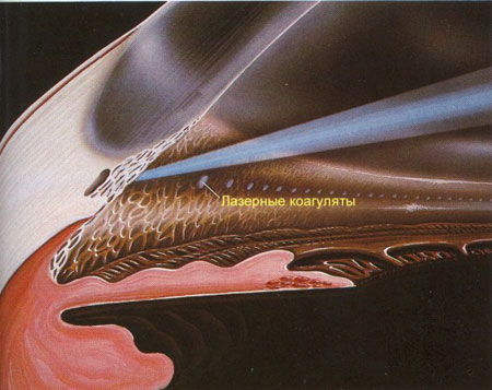 Показания к лазерной циклокоагуляции глаза и выполнение операции