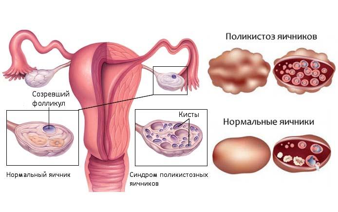 Причины и симптомы поликистоза яичников