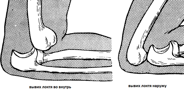 привычный вывих локтевого сустава