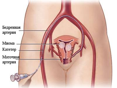 Эмболизация маточных артерий - показания к операции ЭМА