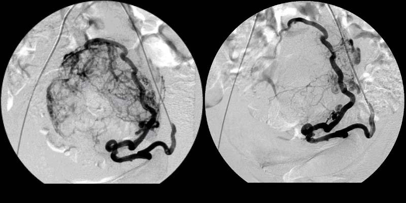 Ангиограммы до и после эмболизации маточной артерии
