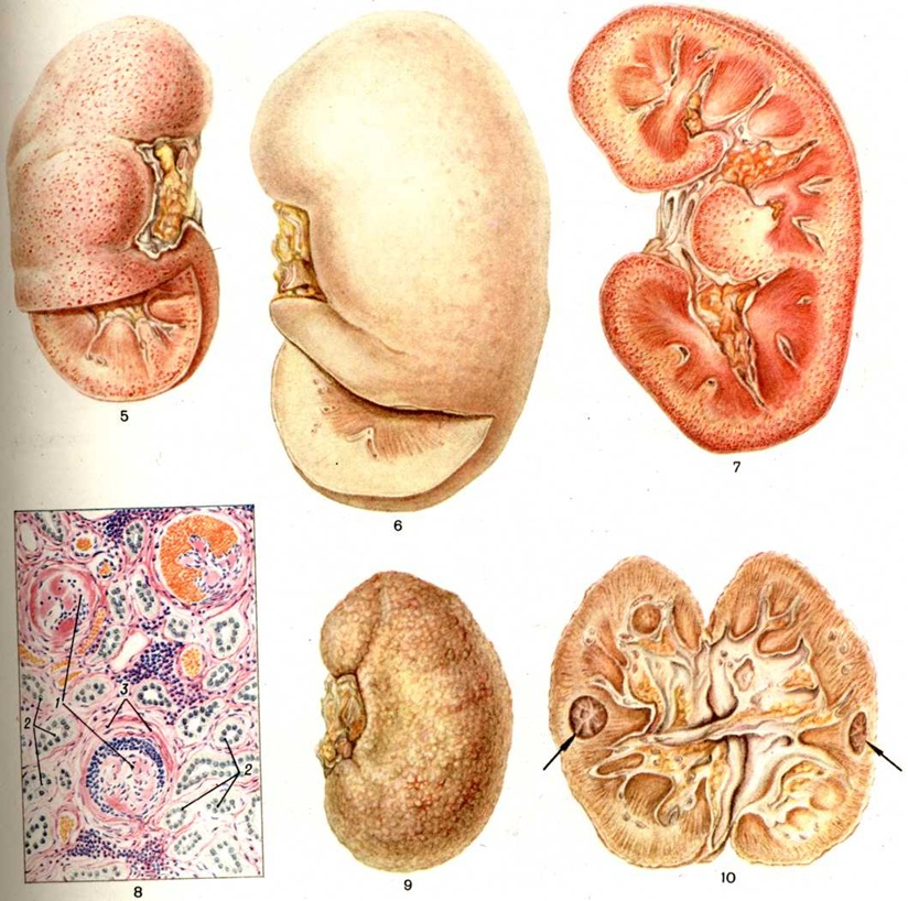 """Гломерулонефрит, или """"пестрая"""" почка с мелкими кровоизлияниями на поверхности органа"""