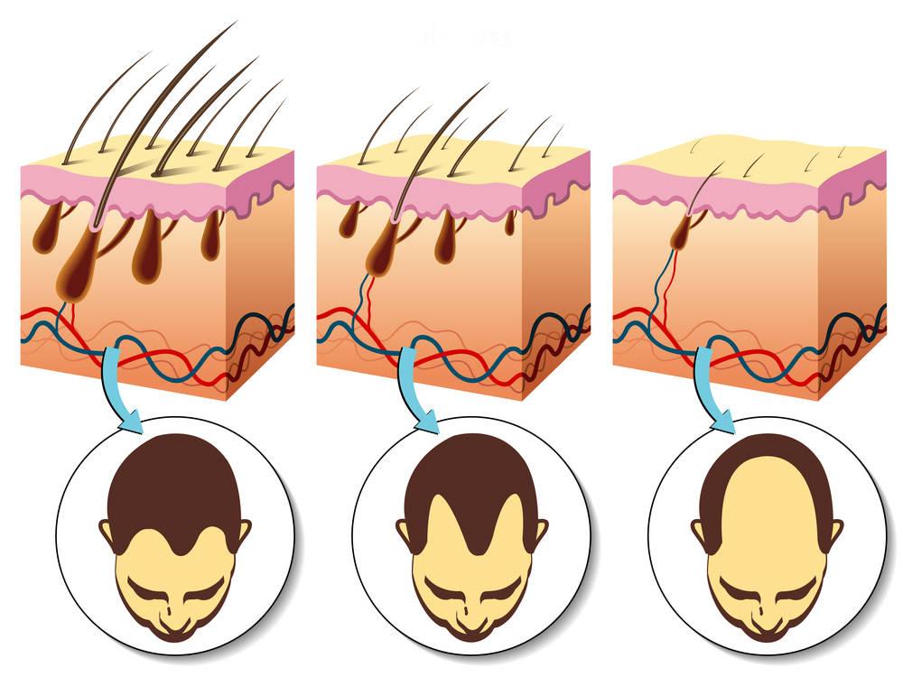 Причины и степени облысения - поможет ли пересадка волос?