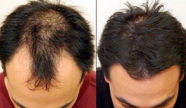 Пересадка волос и причины облысения