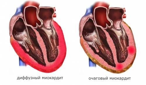 Очаговый и диффузный миокардиты