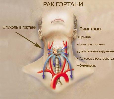 Рак гортани - причины и симптомы