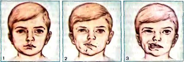 Парез лицевого нерва - причины и симптомы