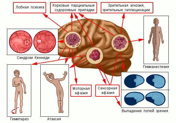Ранние симптомы рака головного мозга