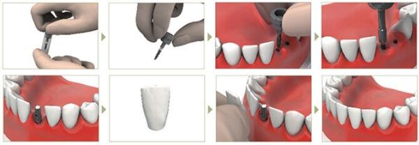Этапы имплантации зубов без разрезов