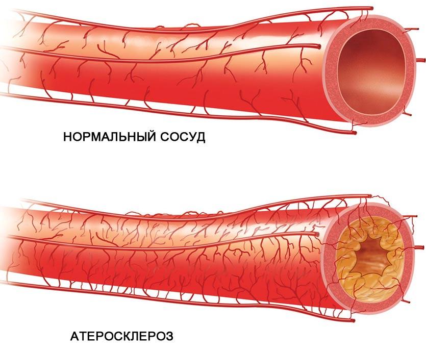 ateroskleroz tipy ateroskleroza simptomy riski - Overview of the main risk factors for atherosclerosis